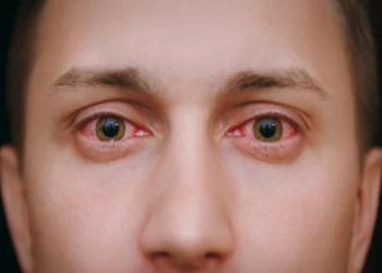 Daun sirih untuk mata merah
